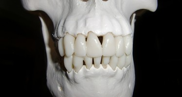 Zahnärzte wissen oft zu wenig über Barotraumata bei Tauchern