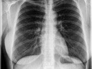 Lungenschäden bei Corona-Patienten gibt Ärzten Rätsel auf